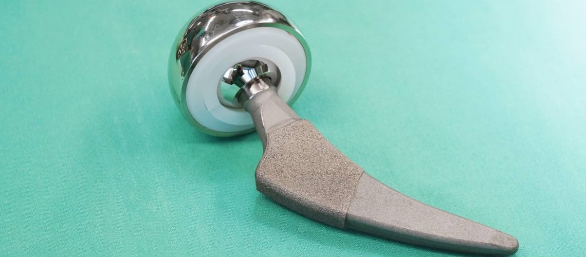 What Is Revision Hip Replacement?